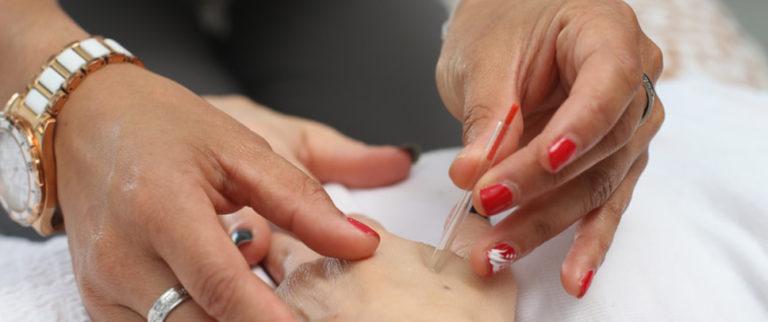 L'acupuncture au secours du sommeil